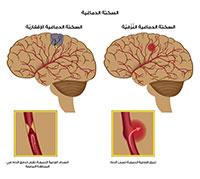 ما هو السكتة الدماغية